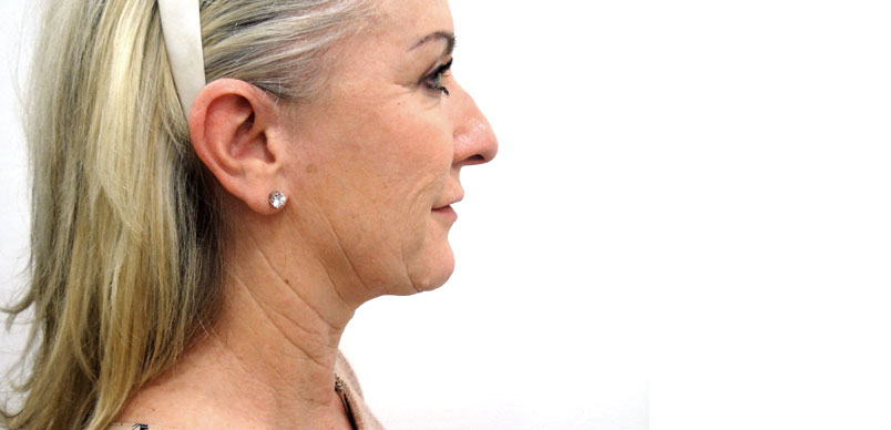 photo before face and neck lift surgery showing patients loose skin and skin folds to the neck cosmetic surgery performed at skin and excess fat at Aset hospital