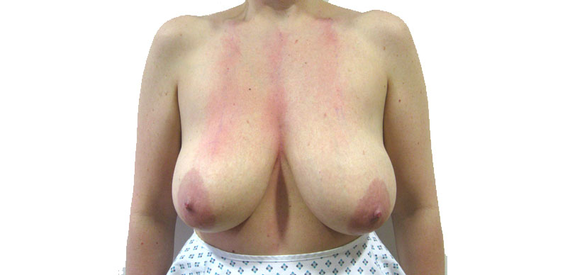Breasts before reduction surgery Gallery