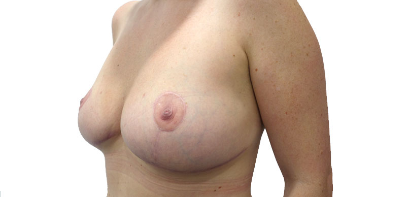 After breast mammaplasty  surgery