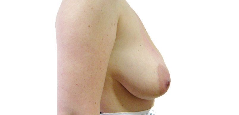 Before correction cosmetic surgery for breast reduction at Aset hospital