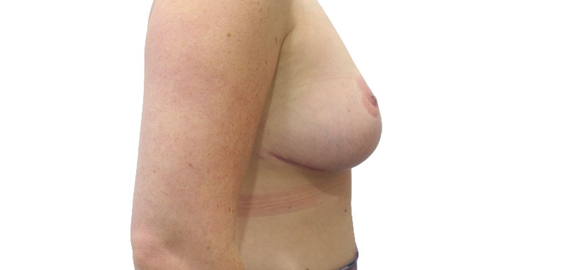 After breast reduction cosmetic surgery at Aset Hospital
