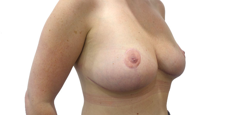 After mammaplasty procedure to make breast smaller in size