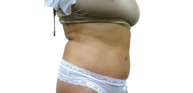 After tummy tuck reduction surgery