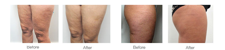 photos showing how effective cellulaze laser surgery is on skin cellulite before and after photographs