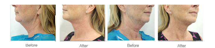 neck lifts performed at Aset Hospital Liverpool before and after photographs showing A 52-year-old woman complains of excess fat and skin of the neck and a lack of definition of the jawline and finaly he results that have been achieved. There has been a creation of a normal angle to the neck, a disappearance of the prominent skin fold below the ear and tighter, younger-looking skin with a loss of creases.